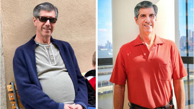 Hoboken man loses 'beer belly' - by removing 30-pound tumor!